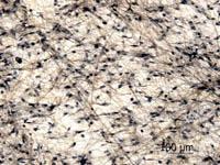 Рыхлая волокнистая неоформленная соединительная ткань. Плёночный препарат из подкожной клетчатки кролика