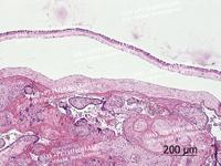 Плацента человека (плодная часть)